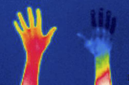 Temperaturmessung mit Wärmebildkamera in der Medizin